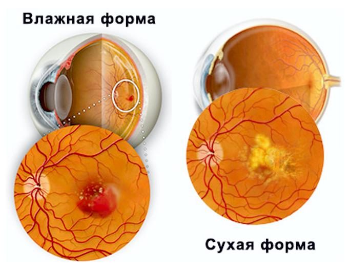 Улучшилось зрение линзы
